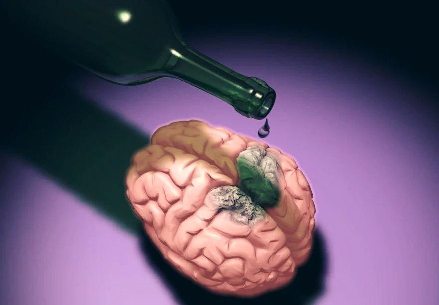Comotie cerebrală și vedere încețoșată. comotie cerebrala simptome