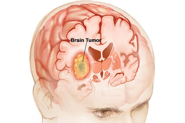 cancer la cap manifestari